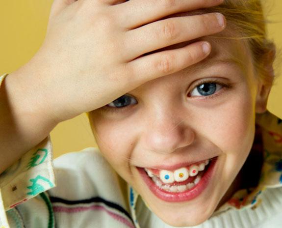 brisbane orthodontist invisalign first for kids