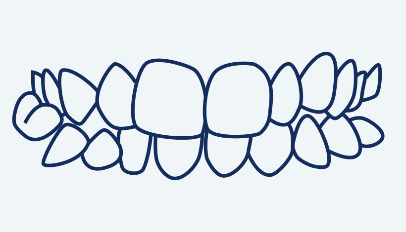 posterior cross bite