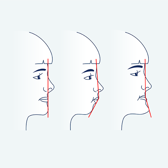brisbane orthodontics facial profile